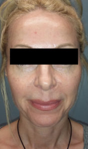 6 treatments of Forma 1 After