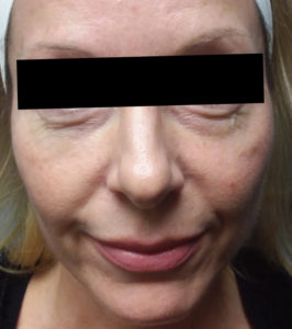 6 treatments of Forma 1 Before