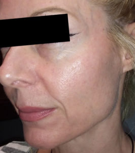 6 treatments of Forma 2 After