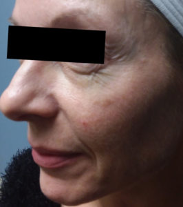 6 treatments of Forma 2 Before