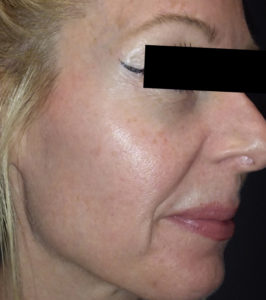 6 treatments of Forma 3 After