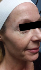 6 treatments of Forma 3 Before