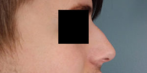 Juvederm Vollure Before